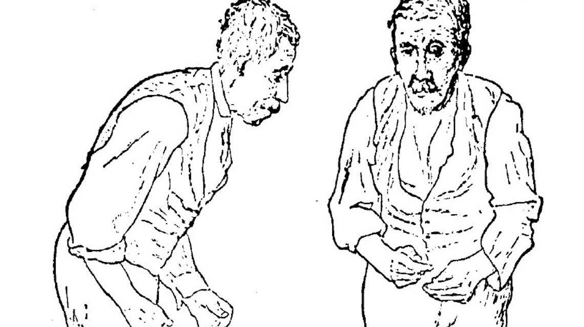 Von Sir William Richard Gowers Parkinson / Wikipedia